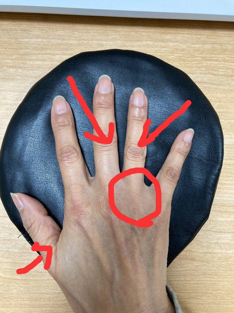 原因 ブシャール 結節 指第二関節の痛みと腫れの原因はブシャール結節の可能性あり