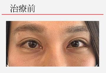 『たれ目というよりは言うよりは自然に目を大きく。たれ目形成術(下眼瞼下制術)モニターさん』