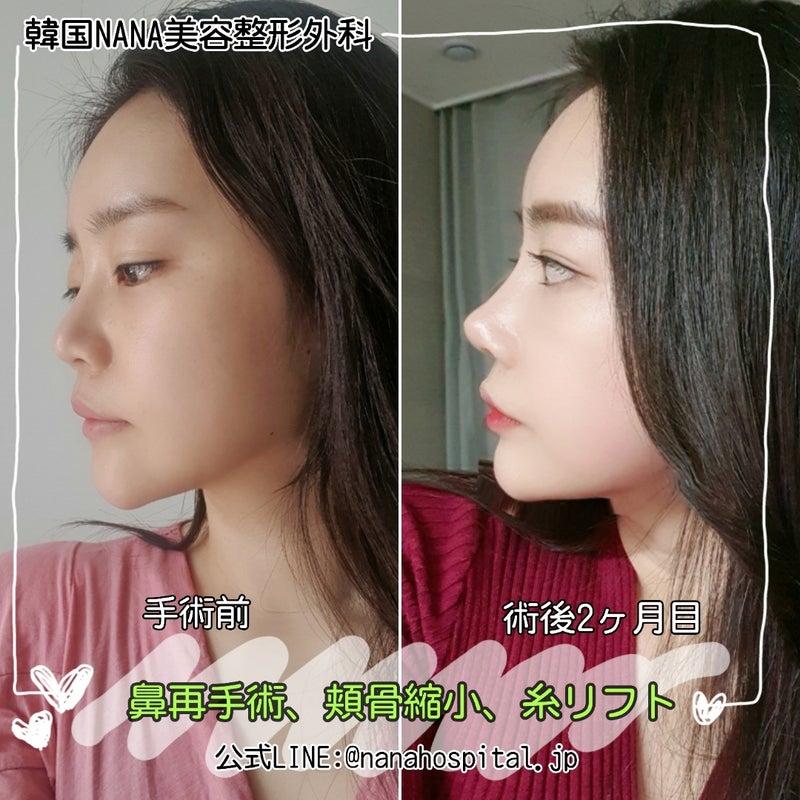 整形 鼻 韓国 韓国の鼻整形の名医を一挙紹介:鼻の整形したいなら韓国のスペシャリストにまかせよう!