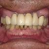 警告!部分入れ歯になると、2~3年おきに1本、また1本と歯を失う理由を知ってますか?の画像
