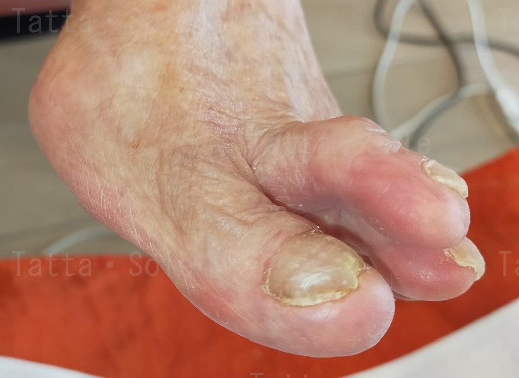 爪甲鉤彎症ケア9か月後
