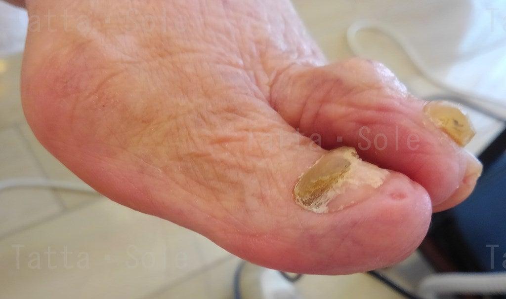 爪甲鉤彎症ケア後