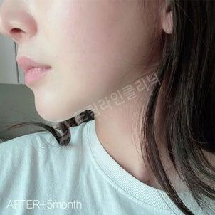 顔の脂肪吸引 ♥ ドリームラインクリニック ♥ 韓国体型専門病院の画像