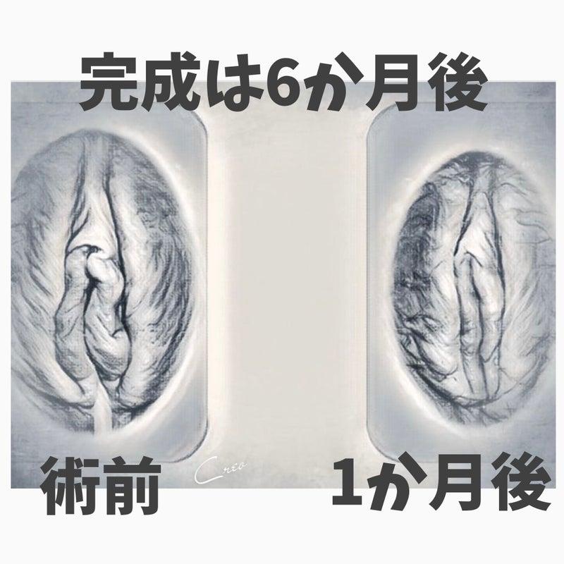 湘南美容外科 小陰唇縮小 女性の美容外科医「平田レナ」公式サイト