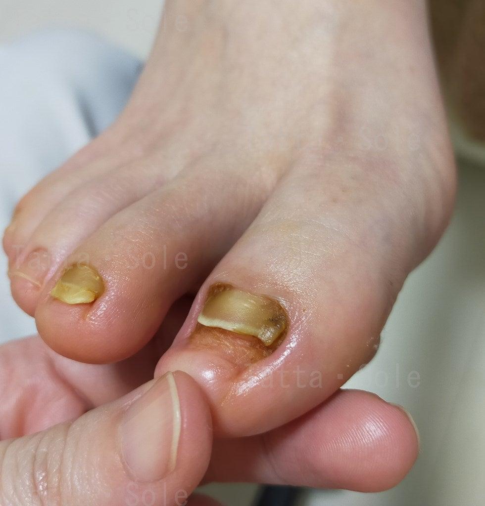 爪甲後鉤彎症ケア後