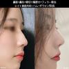 韓国整形・鼻整形]理想の鼻のラインになるてめには?の画像