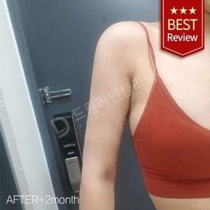 上半身の脂肪吸引 ♥ ドリームラインクリニック ♥ 韓国体型専門病院の画像