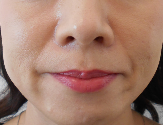 40代ほうれい線治療前笑顔
