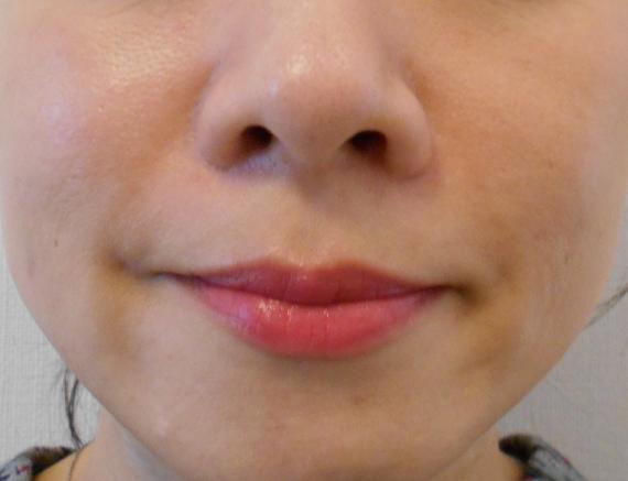 40代ほうれい線治療6カ月後笑顔
