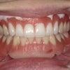 入れ歯でホワイトニング?入れ歯だって、歯の白さや形が選べるって知ってますか?の画像