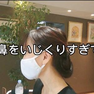 鼻の穴のオデキが一日で治ったよ(•‿•)の画像