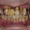 前歯がグラグラで、何年も接着剤で固定しているあなた!手遅れになる前に、今すぐご相談ください。の画像
