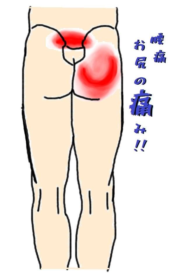 双子筋の痛み お尻が痛い 腰痛