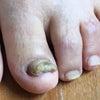 靴に当たって痛かったの画像