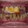 企業秘密ですが、真面目な歯医者さんがやっている、100万円の入れ歯の歯型の採り方を教えますね。の画像