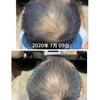 抜け毛が減ったのは育毛剤のおかげの画像