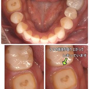 歯肉の手術〜セラミックが入るまでの画像