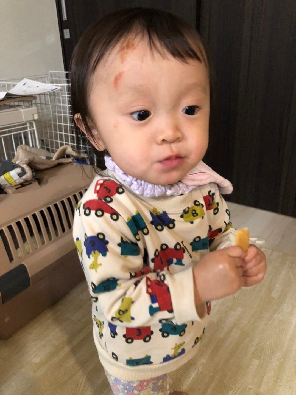 【ニュース】キンタロー。1歳娘が一時預かり先のお散歩で転倒、頭部にケガ 「ショックで立ち直れない」
