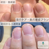 深爪ケア:初回から3週間後の画像