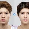 ビュー美容外科 ✧輪郭3点✧ 症例写真をご紹介♫⸜(๑'ᵕ'๑)⸝