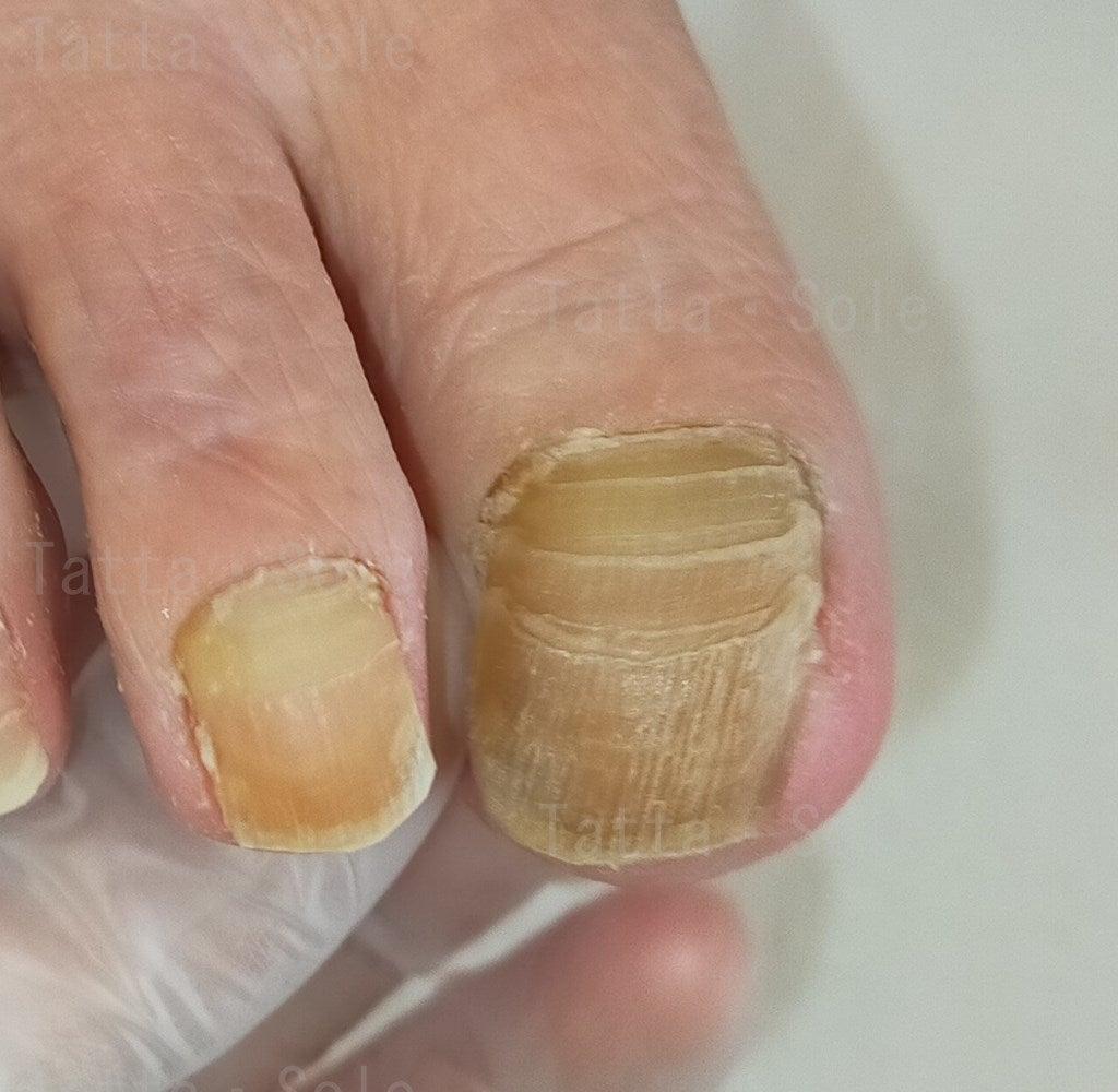 爪甲後鉤彎症