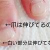 深爪矯正ピンクの部分を増やしたい!の画像