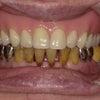 入れ歯になったら、口元がしわしわで美容整形をお考えのあなた!まずは、歯医者さんに相談してくださいの画像