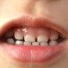 すきっ歯でお悩みですか?の画像