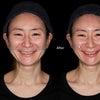ジュビダームビスタボラックスで美しいフェイスラインを造る!~表情筋の調律効果その2~⑤の画像