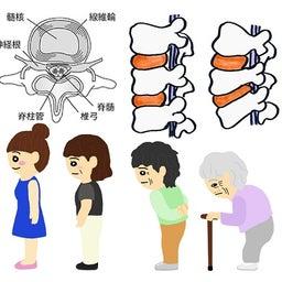 椎間板ヘルニア・骨筋力