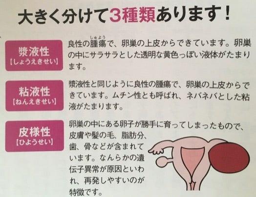 卵巣 の 腫れ 原因