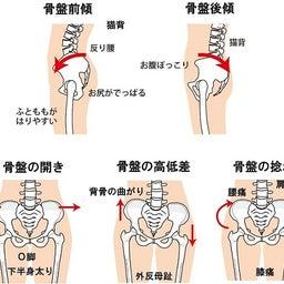 骨盤のゆがみ・症状