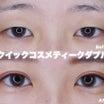 【二重術】重たい瞼から極自然なmix型二重に☆クイックコスメティークダブル開発者の技術力☆