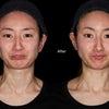 ジュビダームビスタボラックスで美しいフェイスラインを造る!~表情筋の調律効果その2~⑥の画像