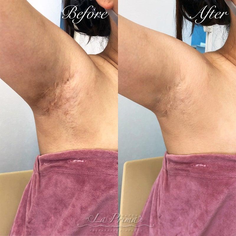 脇の手術痕とアトピー痕をカバーメイク3