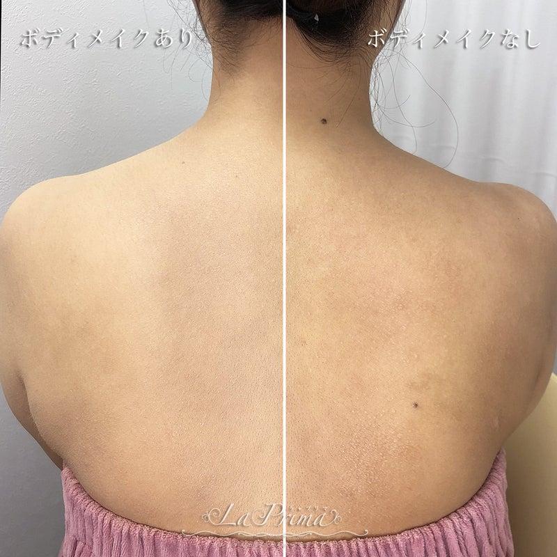 脇の手術痕とアトピー痕をカバーメイク2