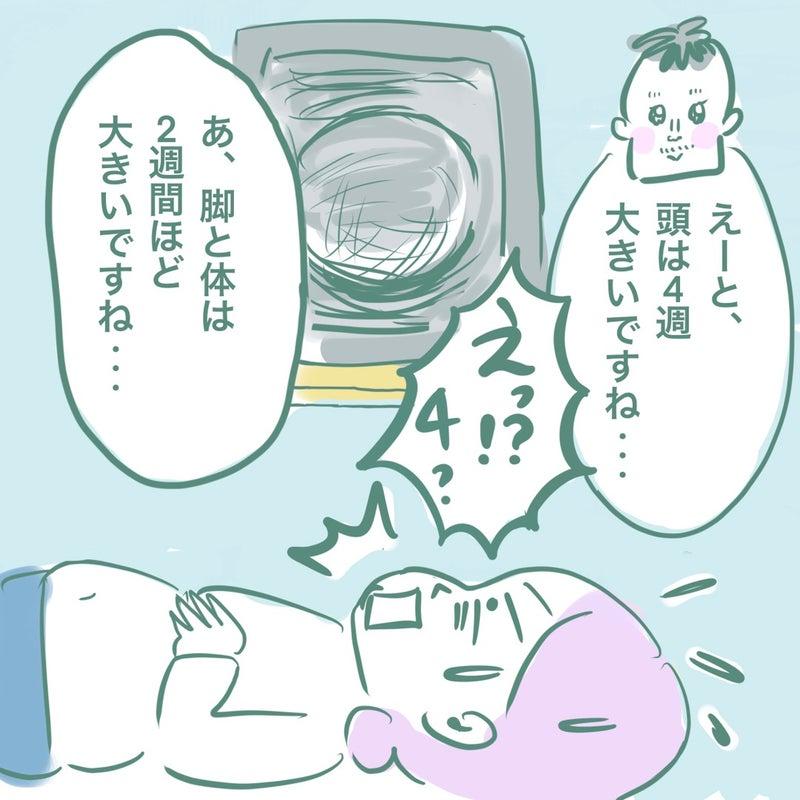 大きめ 胎児