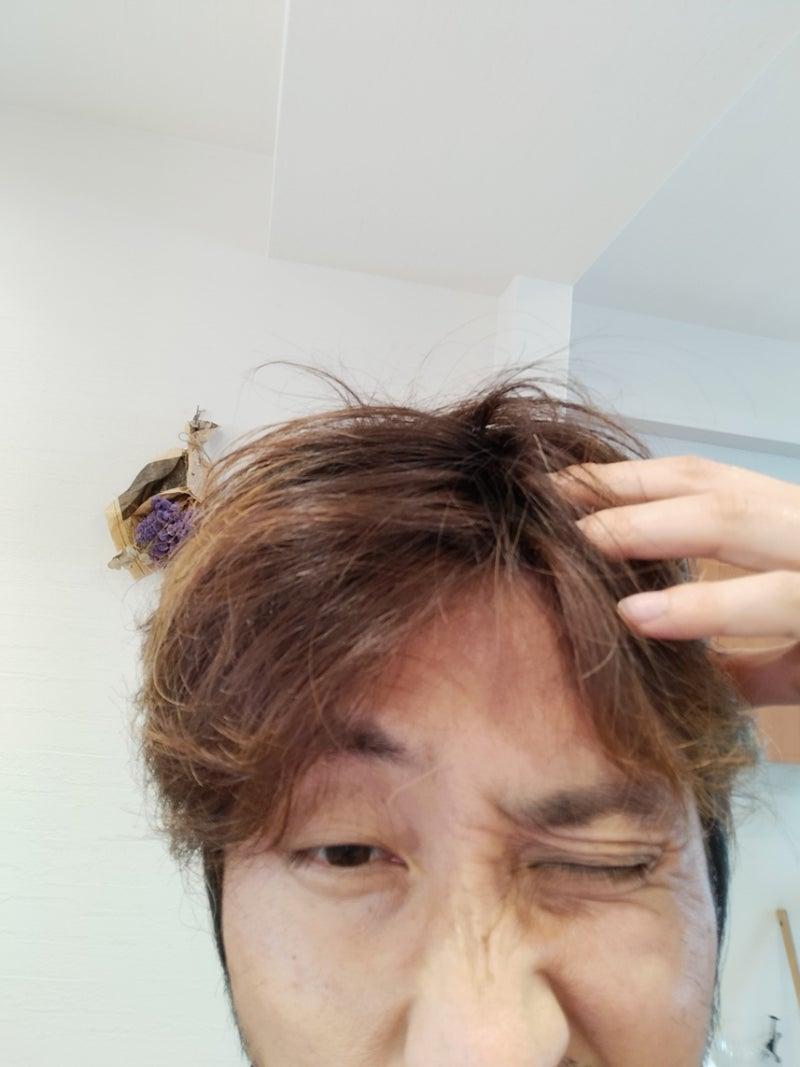 フケ 眉毛 脂漏性湿疹(しろうせい湿疹)・脂漏性皮膚炎(しろうせいひふえん)|新宿 高田馬場の皮膚科・美容皮膚科「山手皮フ科クリニック」