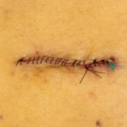 画像 手術(皮下・軟部腫瘍摘出術)の流れについて の記事より 6つ目