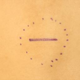 画像 手術(皮下・軟部腫瘍摘出術)の流れについて の記事より 1つ目