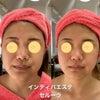お顔の脂肪吸引手術後のインディバでこんなに綺麗になっています。(#^.^#)の画像