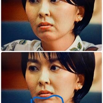 いつの間にか顎の形が 変わっている