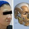 注入症例~顎が縮むと表情筋も縮む~①の画像