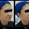 注入症例~顎が縮むと表情筋も縮む~②の画像