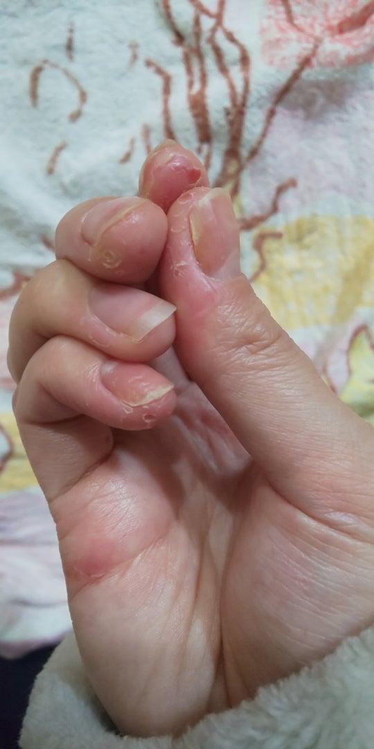 子供 手 湿疹