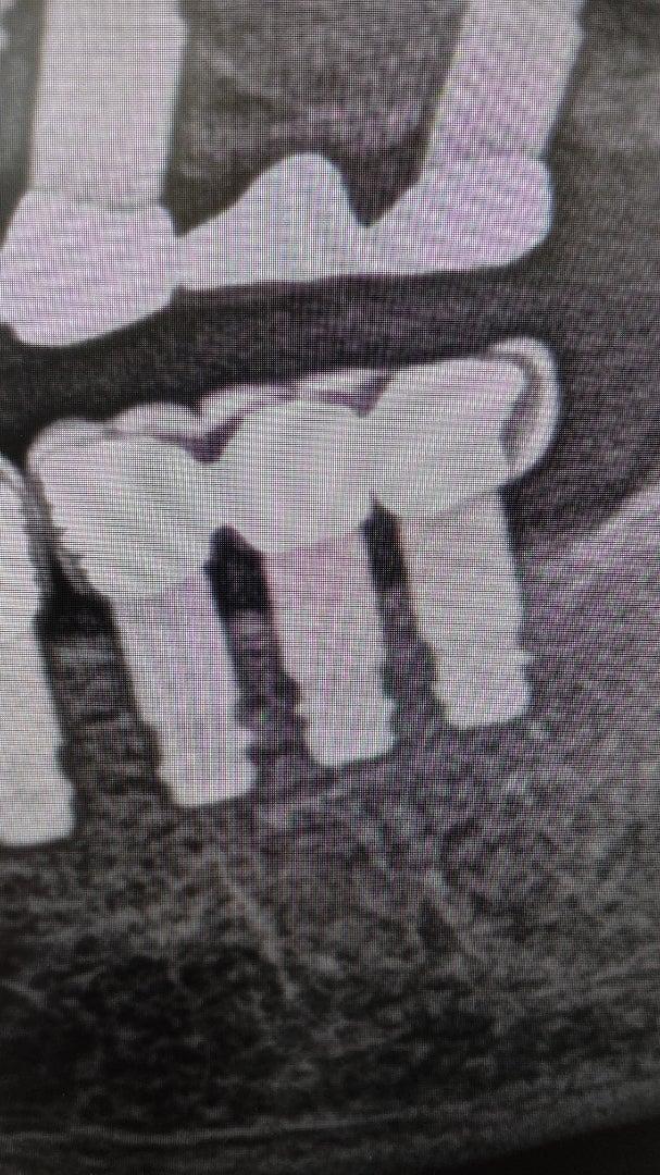埋入後16年になるインプラント症例~歯ぎしり症例~