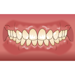 画像 八重歯ってなぜ良くないの? の記事より 2つ目