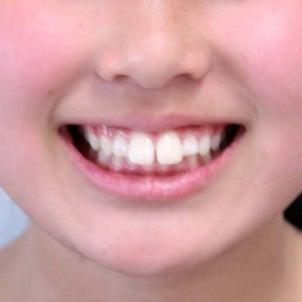 11歳 女子 上顎前突が主訴 小臼歯4本抜歯 ブラケット&Jフックによる治療が終了しました。の画像