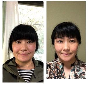 表情筋トレーニング1年の変化の様子の画像