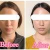 3年11か月経過後のお顔の変化♪お顔のムクミ・クスミも即撃退の小顔矯正の画像